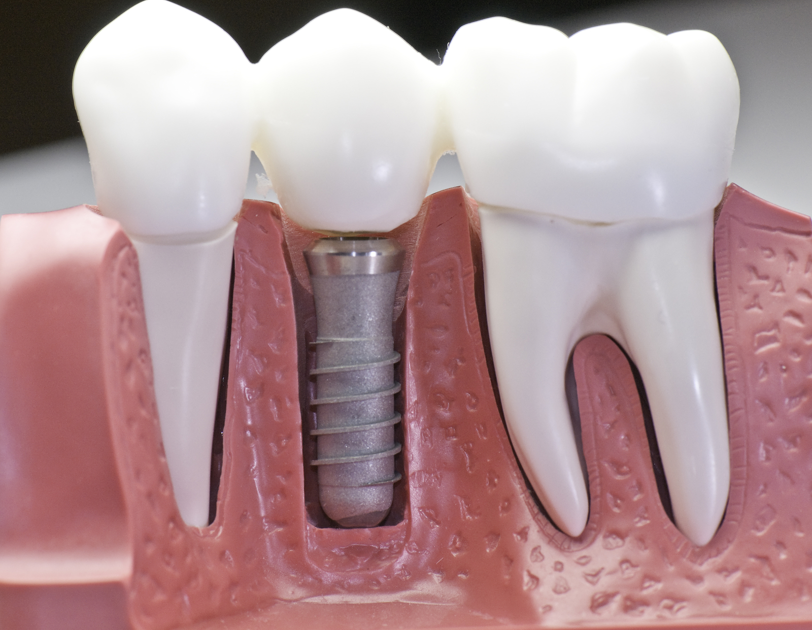 dental implant financing from UMC